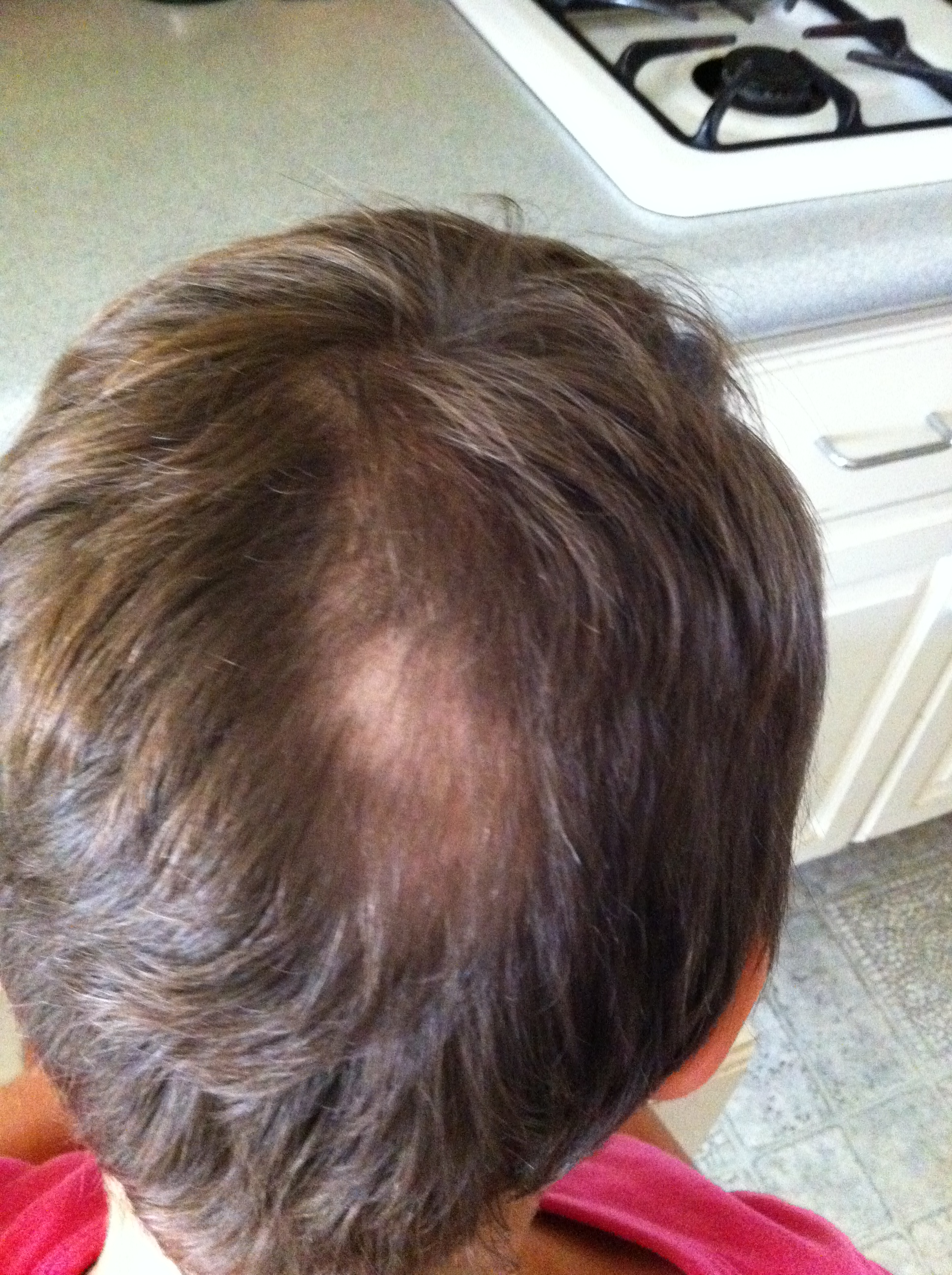 Cowlick vs bald spot  Forum By and for Hair Loss Patients